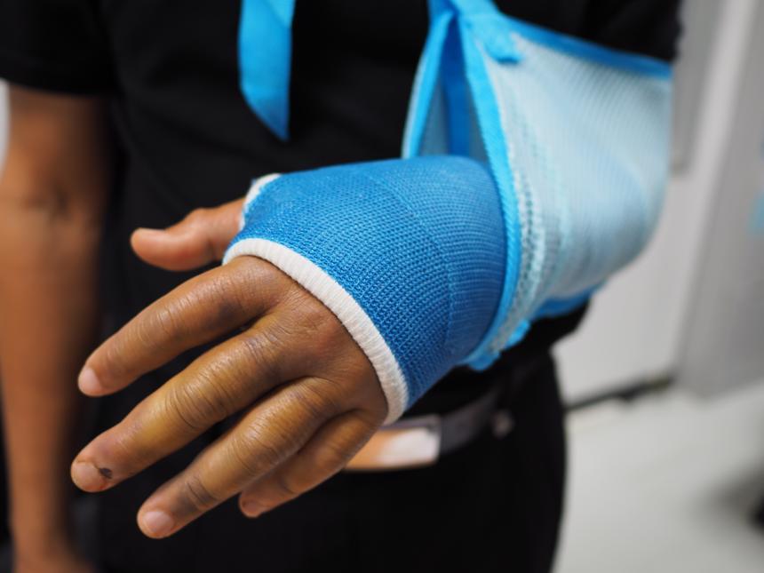 A person with an arm broken in Jasper, AL