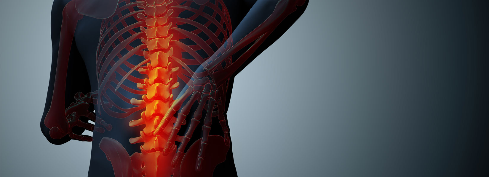 X-ray of back injuries in a personal injury claim in Pleasant Grove, AL