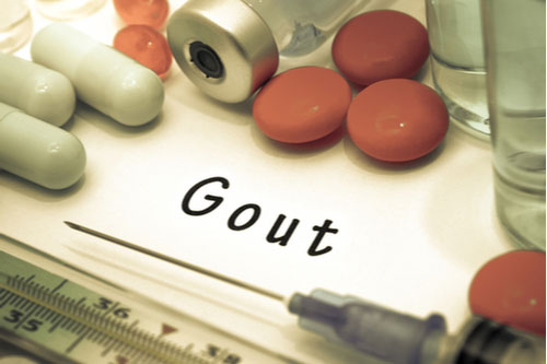 Gout - diagnosis written on a white piece of paper, syringe and pills