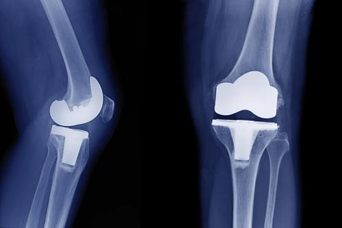 Contact our lawyers to review your Birmingham Stryker knee implant lawsuit today.
