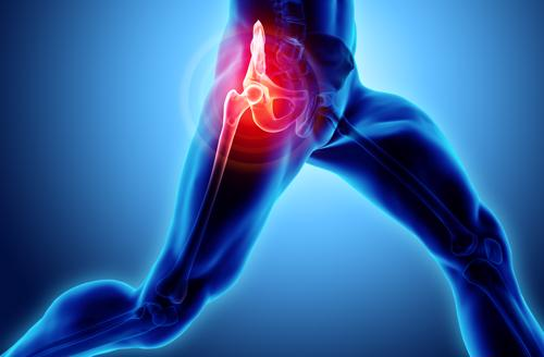 Schedule a free consultation for your Birmingham Stryker hip replacement lawsuit today.